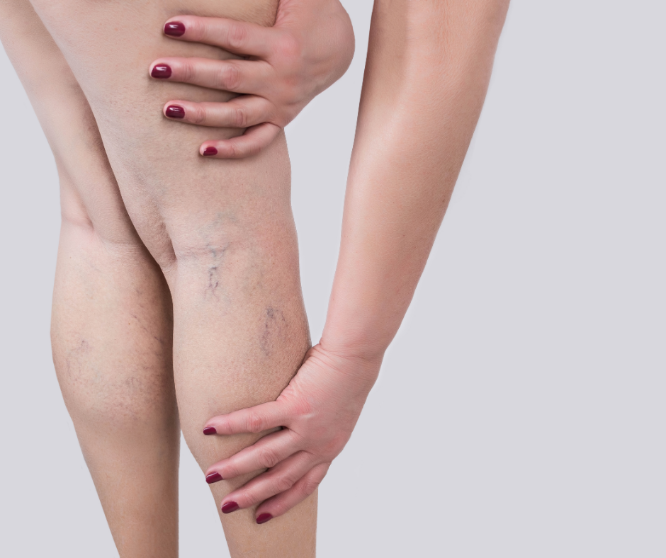 What Are The Best New Varicose Vein Treatment Options?